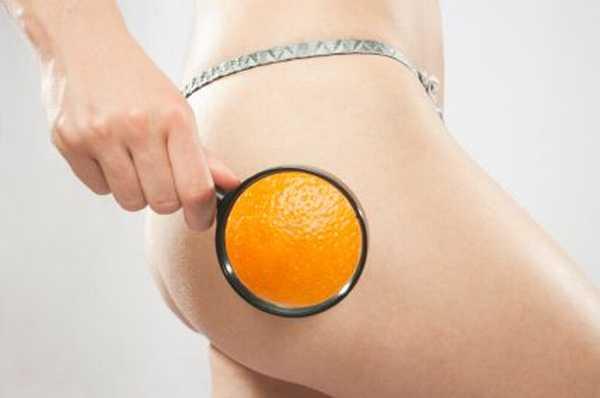 Cellulite-1