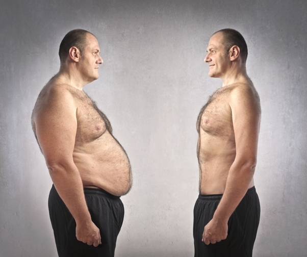 gojaznost