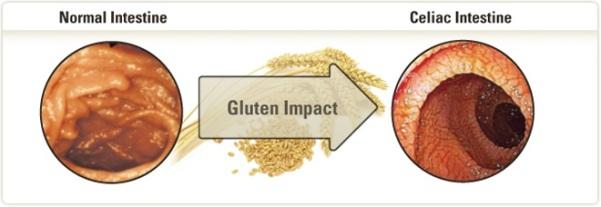 ishrana bez glutena - uticaj